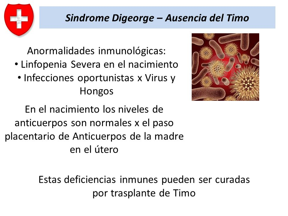 Sindrome Digeorge – Ausencia del Timo Anormalidades inmunológicas: Linfopenia Severa en el nacimiento Infecciones oportunistas x Virus y Hongos En el