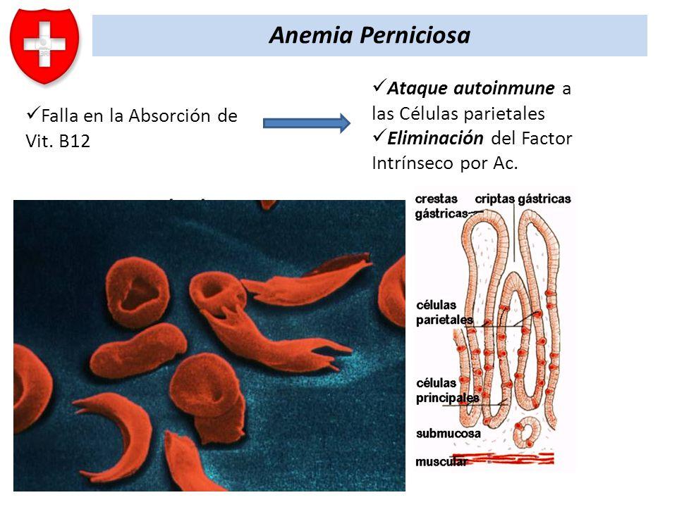 Resultado Anemia Perniciosa Falla en la Absorción de Vit. B12 Ataque autoinmune a las Células parietales Eliminación del Factor Intrínseco por Ac. Det