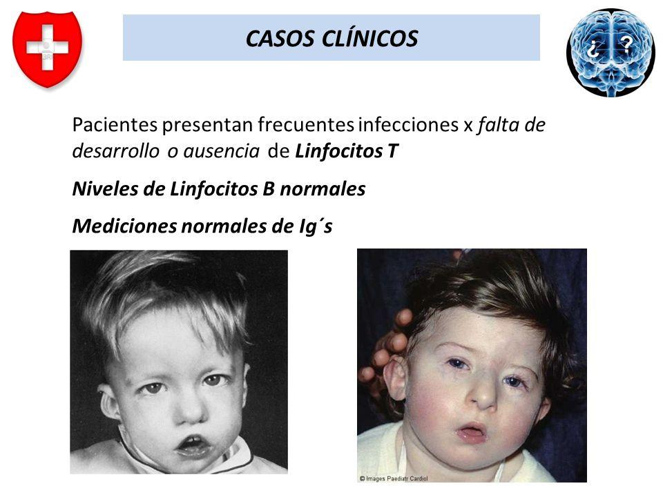 CASOS CLÍNICOS Pacientes presentan frecuentes infecciones x falta de desarrollo o ausencia de Linfocitos T Niveles de Linfocitos B normales Mediciones