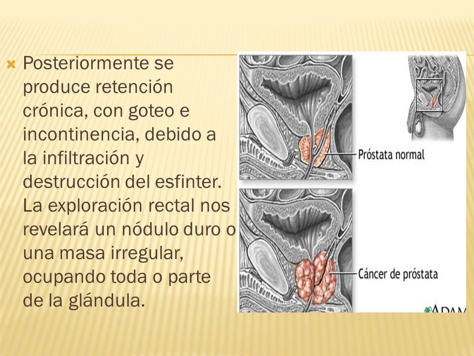 Posteriormente se produce retención crónica, con goteo e incontinencia, debido a la infiltración y destrucción del esfinter. La exploración rectal nos