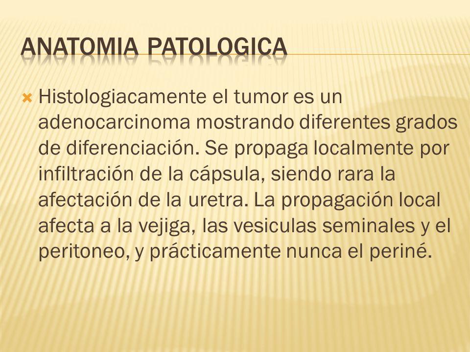 Histologiacamente el tumor es un adenocarcinoma mostrando diferentes grados de diferenciación. Se propaga localmente por infiltración de la cápsula, s