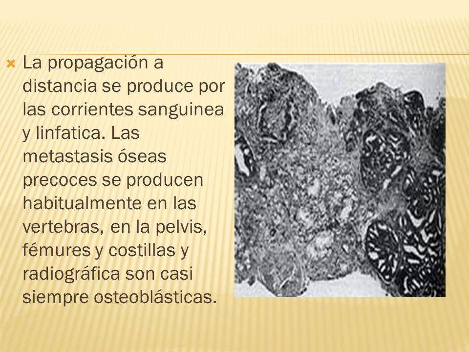 La propagación a distancia se produce por las corrientes sanguinea y linfatica. Las metastasis óseas precoces se producen habitualmente en las vertebr