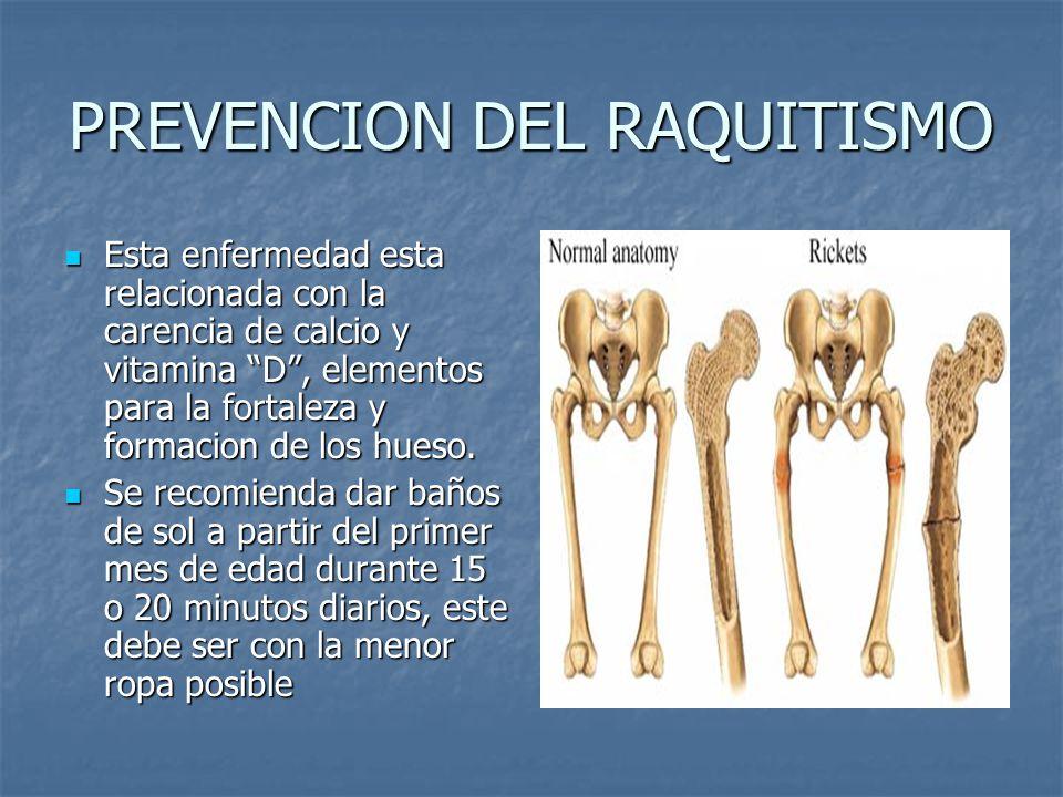 PREVENCION DEL RAQUITISMO Esta enfermedad esta relacionada con la carencia de calcio y vitamina D, elementos para la fortaleza y formacion de los hueso.