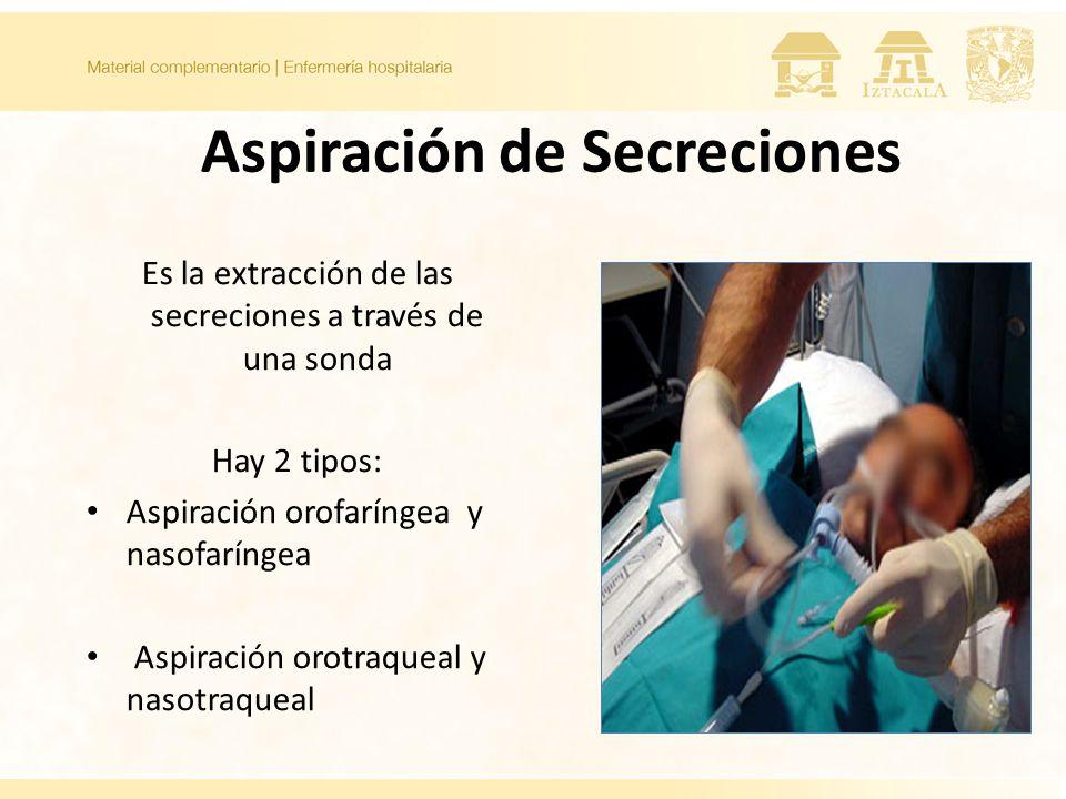 Aspiración de Secreciones Es la extracción de las secreciones a través de una sonda Hay 2 tipos: Aspiración orofaríngea y nasofaríngea Aspiración orotraqueal y nasotraqueal