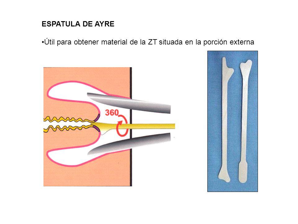 Muestra Endocervical Pequeño giro de 90º con lo cual se logra obtener material de toda la circunferencia Pequeño giro de 90º con lo cual se logra obtener material de toda la circunferencia Un muestreo enérgico puede provocar sangrado y diluir la muestra Un muestreo enérgico puede provocar sangrado y diluir la muestra