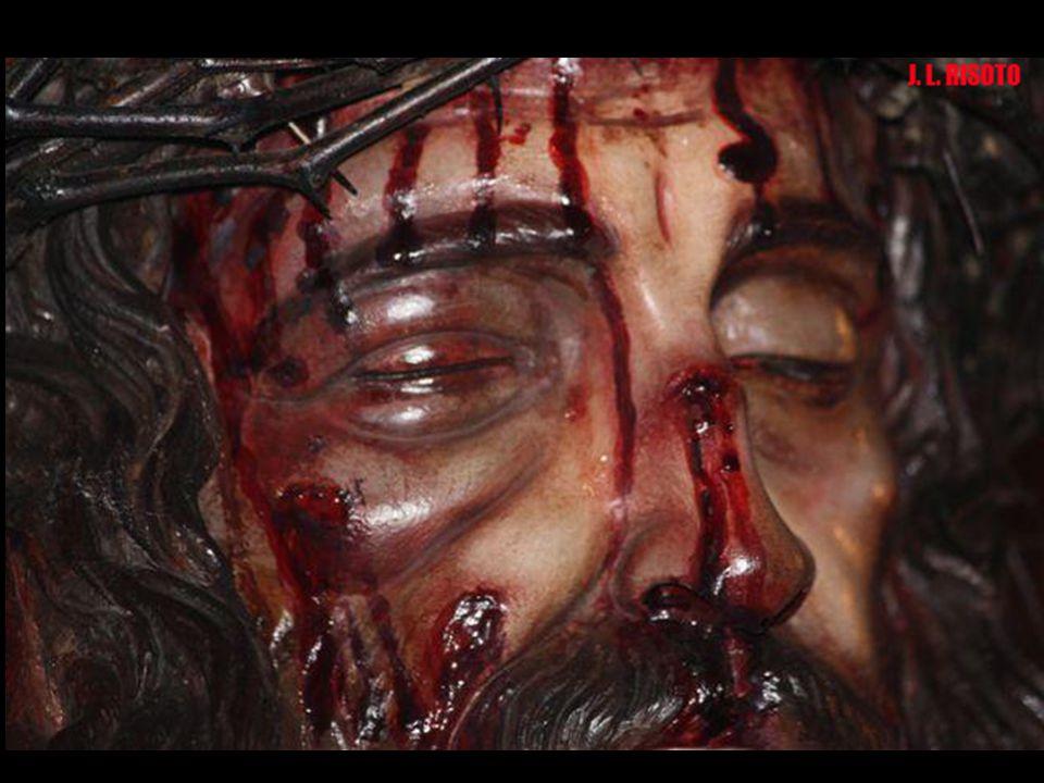 El lado derecho del rostro está hinchado y amoratado tras la rotura del pómulo. La corona de espinas es de la misma especie vegetal palestina que los