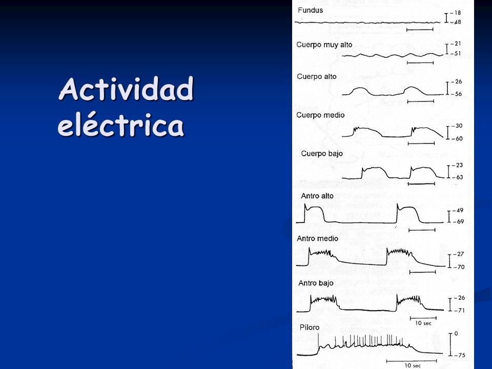 Actividadeléctrica