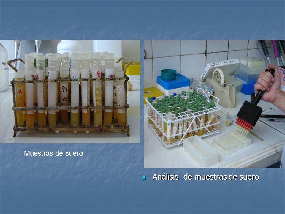 Análisis de muestras de suero Análisis de muestras de suero Muestras de suero