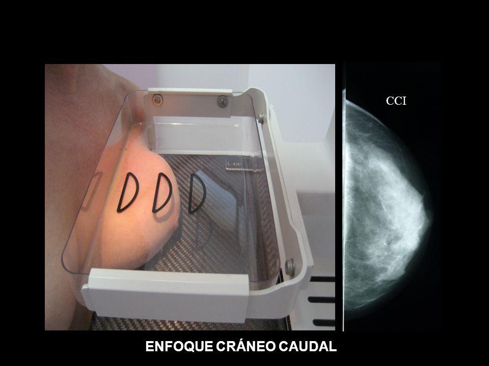 ENFOQUE CRÁNEO CAUDAL CCI
