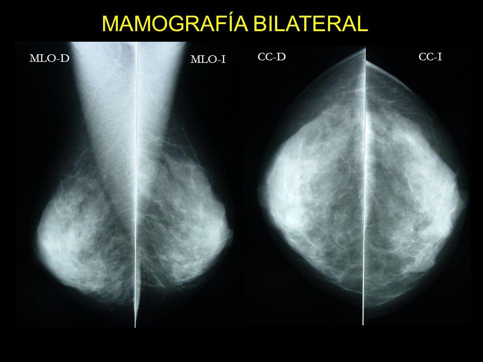 MLO-D MLO-I CC-D CC-I MAMOGRAFÍA BILATERAL