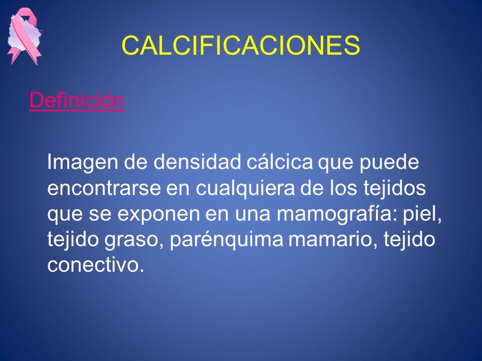 CALCIFICACIONES Definición Imagen de densidad cálcica que puede encontrarse en cualquiera de los tejidos que se exponen en una mamografía: piel, tejido graso, parénquima mamario, tejido conectivo.