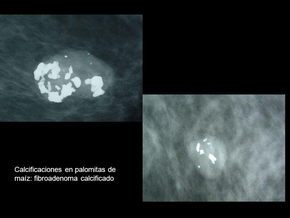 Calcificaciones en palomitas de maíz: fibroadenoma calcificado