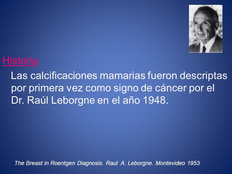 Historia Las calcificaciones mamarias fueron descriptas por primera vez como signo de cáncer por el Dr. Raúl Leborgne en el año 1948. The Breast in Ro