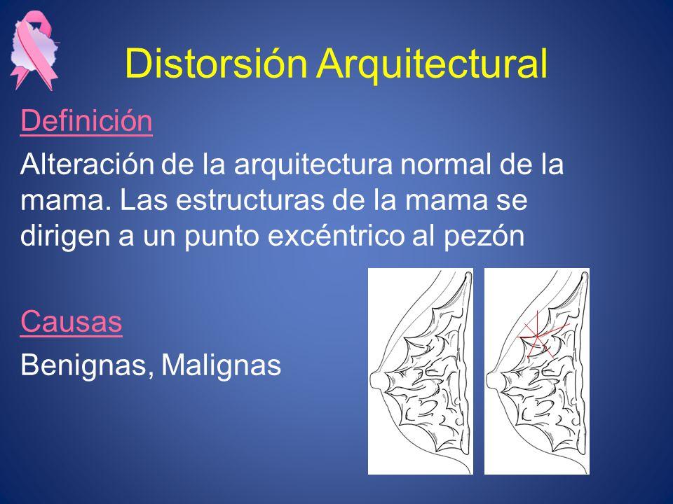 Distorsión Arquitectural Definición Alteración de la arquitectura normal de la mama. Las estructuras de la mama se dirigen a un punto excéntrico al pe