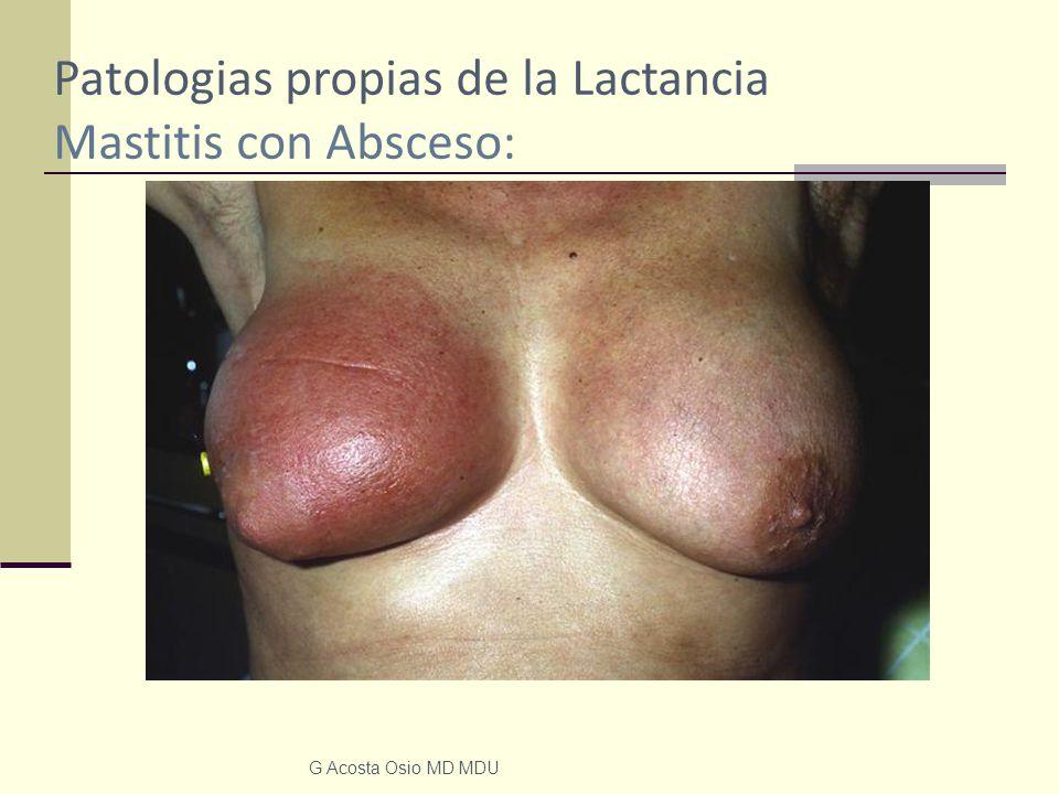 Patologias propias de la Lactancia Mastitis con Absceso: G Acosta Osio MD MDU