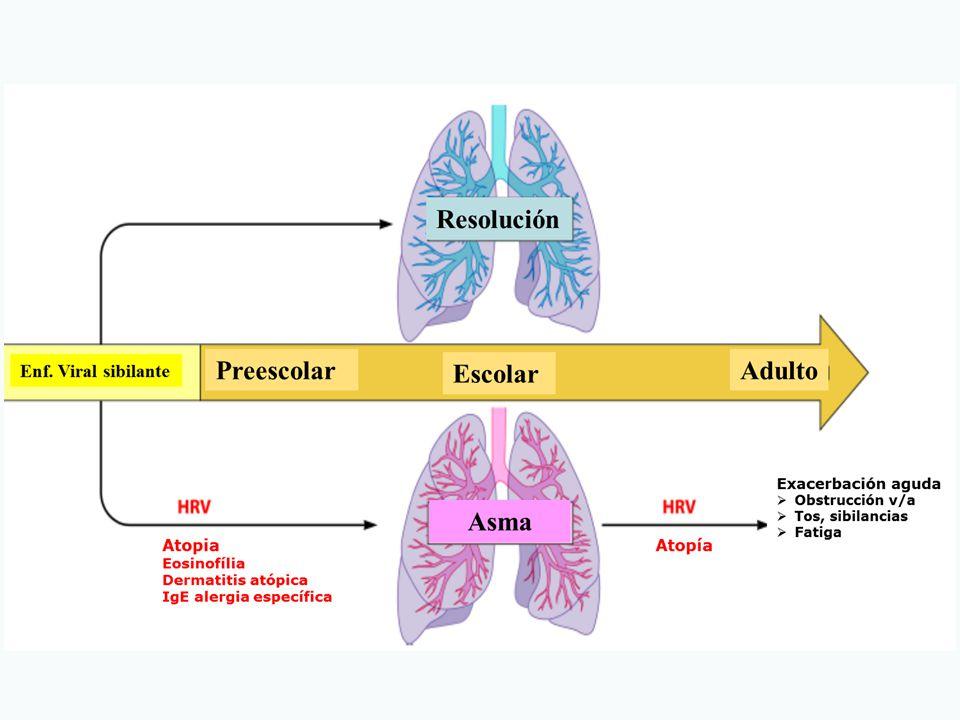 Cinco preguntas básicas en la evaluación de un niño con infecciones respiratorias recurrentes ¿1.