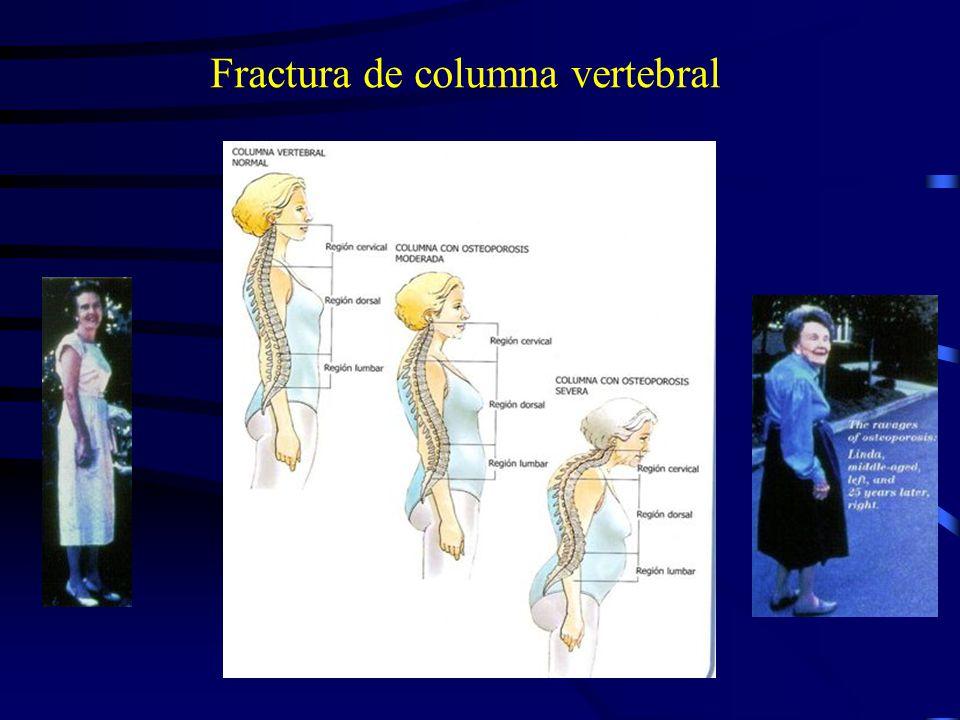 Fracturas óseas en la mujer: antes y después de la menopausia Prevalencia de Fracturas por 100 por año Postmenopausia Premenopausia (n = 557) Edad (en