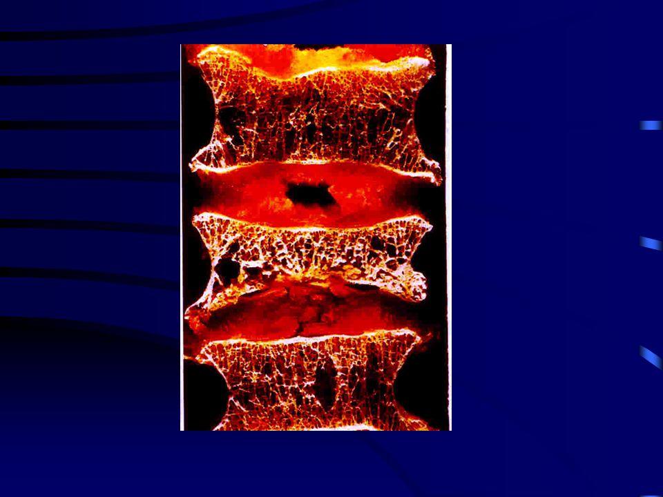 Las Fx vertebrales indican riesgo alto y beneficios con tratamiento. Aumenta 6-veces el riesgo de otra Fx vertebral Se triplica el riesgo de Fx de cad