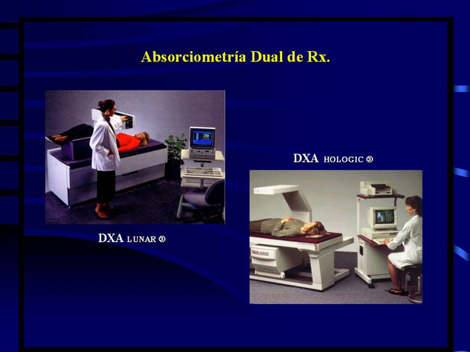 DIAGNÓSTICO DE OSTEOPOROSIS Métodos de medición de masa ósea. Radiografias simples.Radiografias simples. Radiogrametría metacarpalRadiogrametría metac