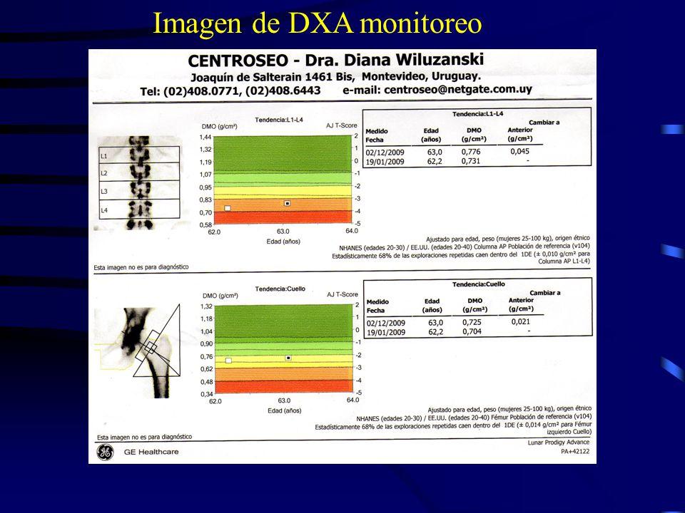 Medicación que estimula la formación ósea - PTH - parathormona recombinante -Ranelato de estroncio: 1 sobre por día disuelto en agua 2hs lejos del Cal