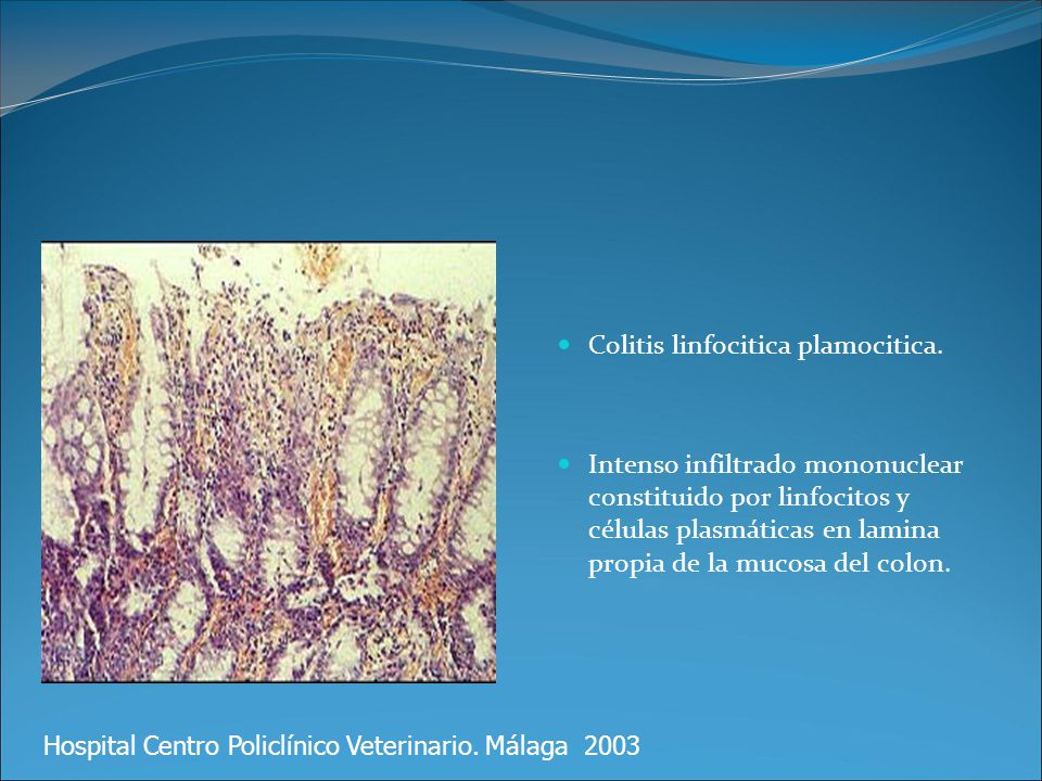 Colitis linfocitica plamocitica. Intenso infiltrado mononuclear constituido por linfocitos y células plasmáticas en lamina propia de la mucosa del col