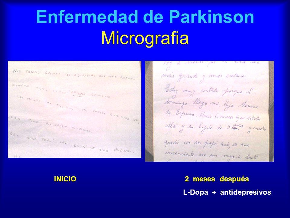 Enfermedad de Parkinson Micrografia INICIO 2 meses después L-Dopa + antidepresivos