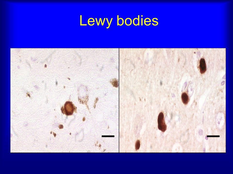 Lewy bodies