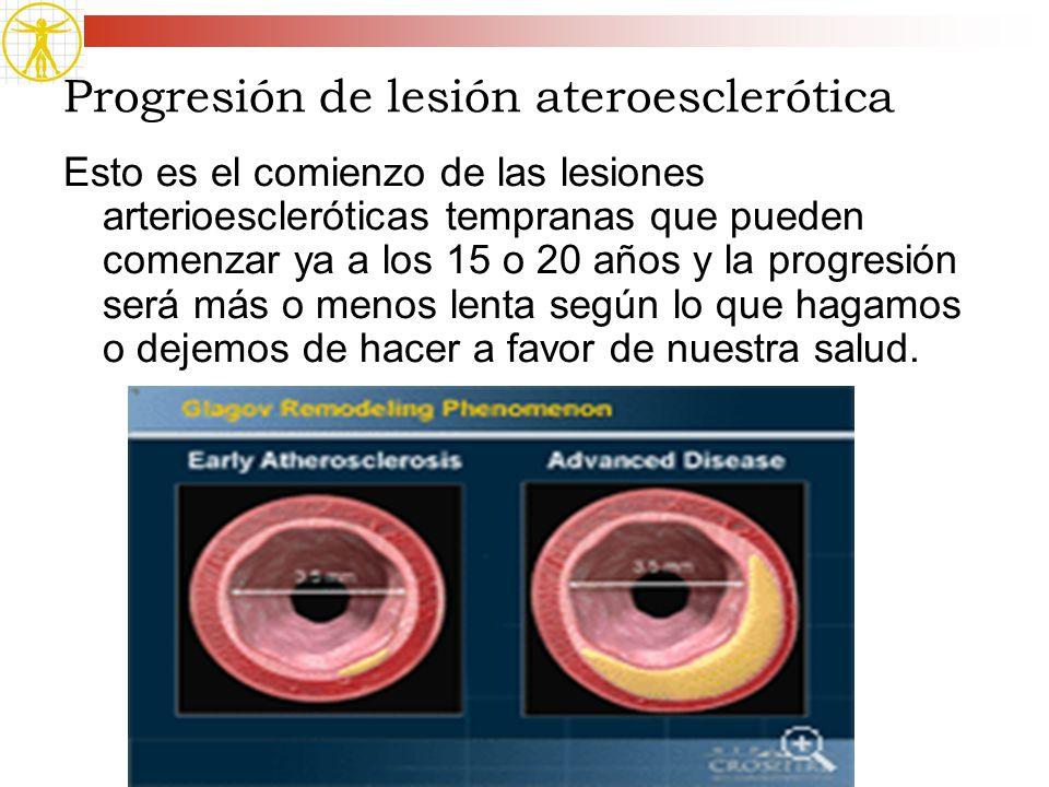 Progresión de lesión ateroesclerótica Esto es el comienzo de las lesiones arterioescleróticas tempranas que pueden comenzar ya a los 15 o 20 años y la