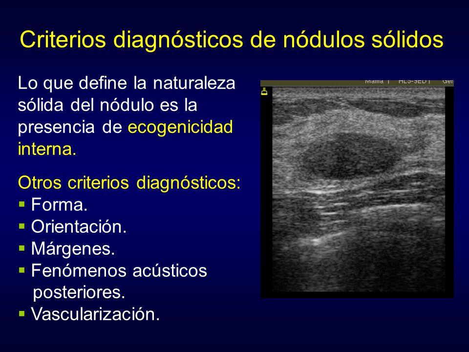 Criterios diagnósticos de nódulos sólidos Lo que define la naturaleza sólida del nódulo es la presencia de ecogenicidad interna. Otros criterios diagn