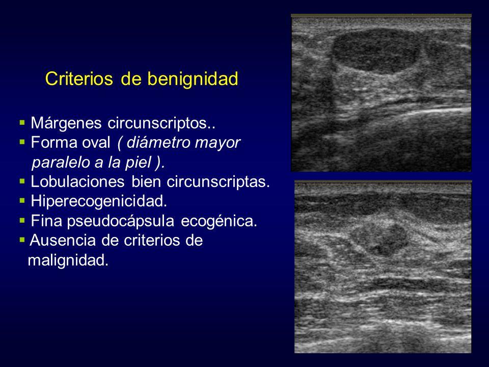 Criterios de benignidad Márgenes circunscriptos.. Forma oval ( diámetro mayor paralelo a la piel ). Lobulaciones bien circunscriptas. Hiperecogenicida