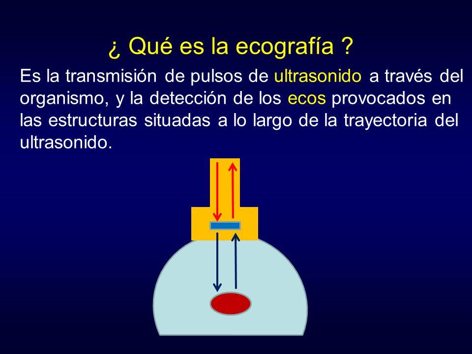 ¿ Qué es la ecografía ? Es la transmisión de pulsos de ultrasonido a través del organismo, y la detección de los ecos provocados en las estructuras si