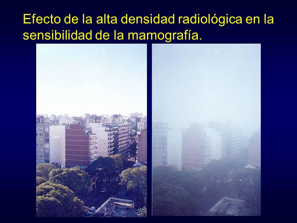 Efecto de la alta densidad radiológica en la sensibilidad de la mamografía.