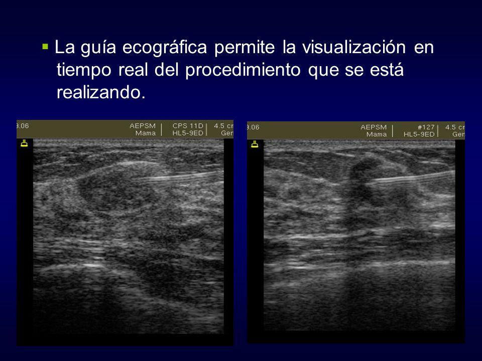 La guía ecográfica permite la visualización en tiempo real del procedimiento que se está realizando.