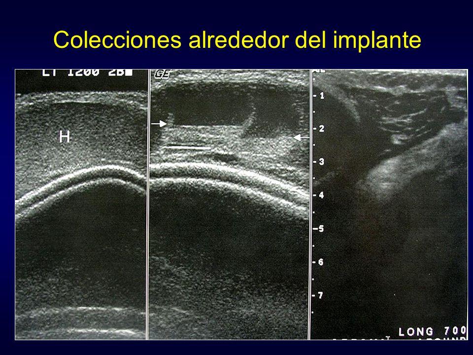 Colecciones alrededor del implante