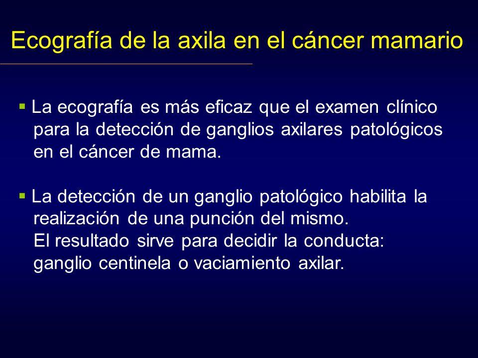 Ecografía de la axila en el cáncer mamario La ecografía es más eficaz que el examen clínico para la detección de ganglios axilares patológicos en el cáncer de mama.