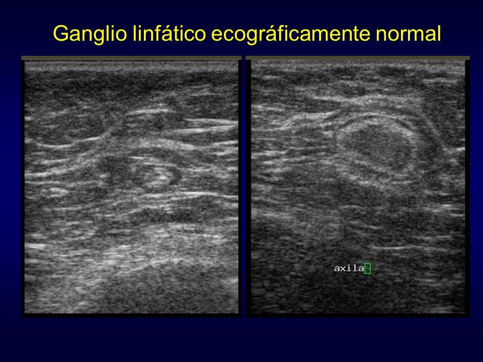 Ganglio linfático ecográficamente normal