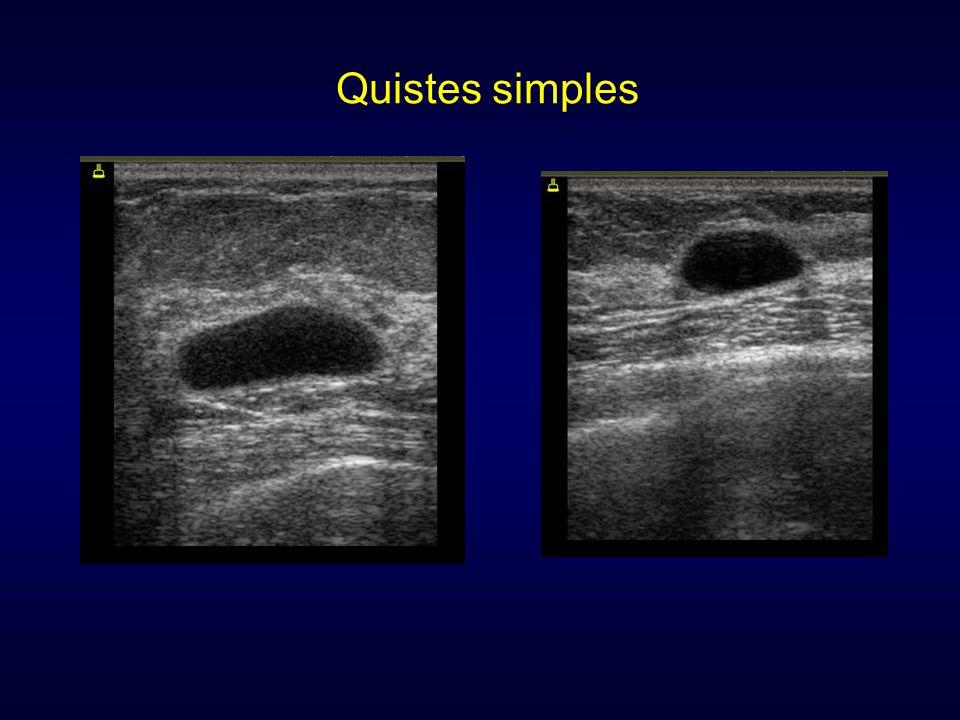 41 años de edad. BRCA 2 Radiographics 2007; 27: 165-182 Second look Ecografía de second look