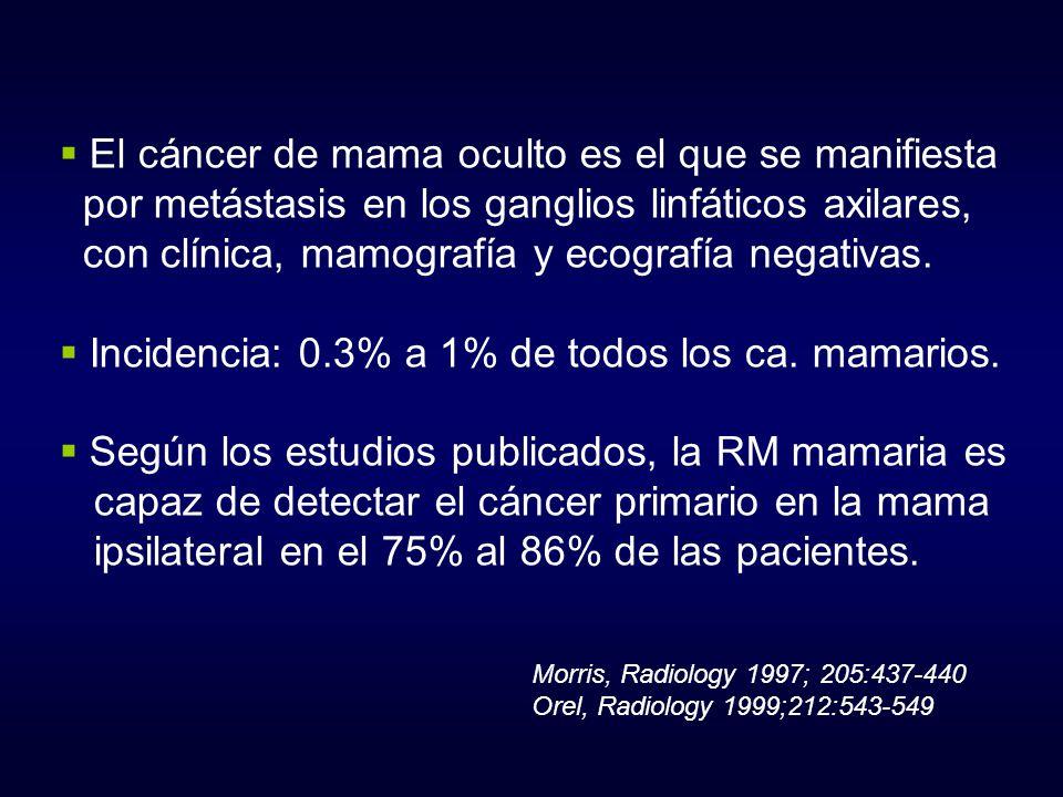 El cáncer de mama oculto es el que se manifiesta por metástasis en los ganglios linfáticos axilares, con clínica, mamografía y ecografía negativas. In