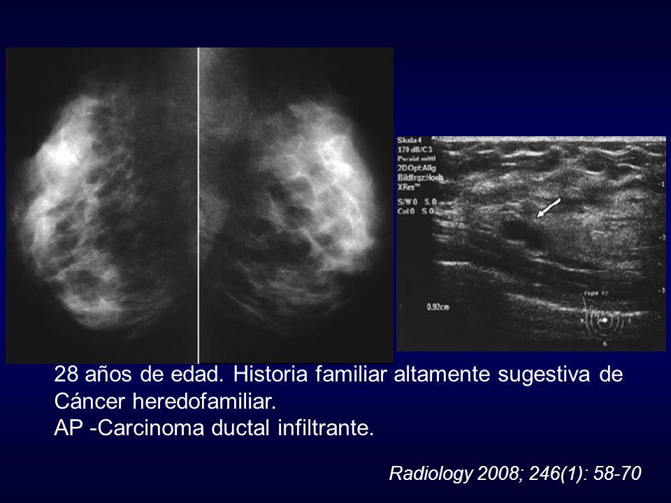 28 años de edad. Historia familiar altamente sugestiva de Cáncer heredofamiliar. AP -Carcinoma ductal infiltrante. Radiology 2008; 246(1): 58-70