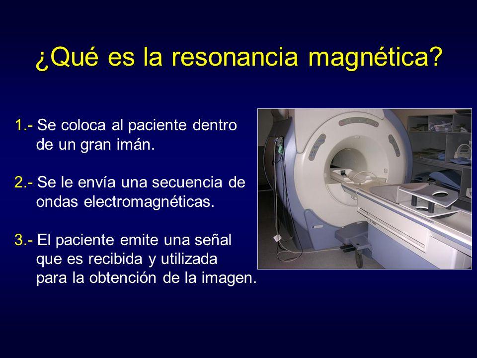 ¿Qué es la resonancia magnética? 1.- Se coloca al paciente dentro de un gran imán. 2.- Se le envía una secuencia de ondas electromagnéticas. 3.- El pa