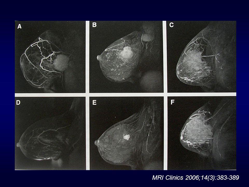 MRI Clinics 2006;14(3):383-389