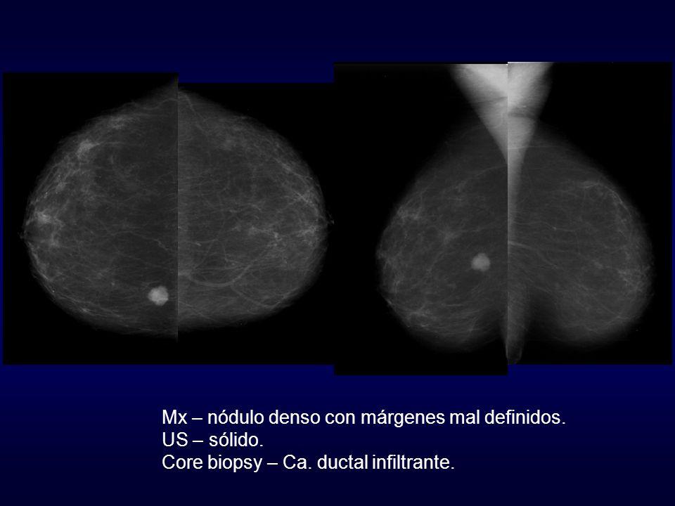 Mx – nódulo denso con márgenes mal definidos. US – sólido. Core biopsy – Ca. ductal infiltrante.