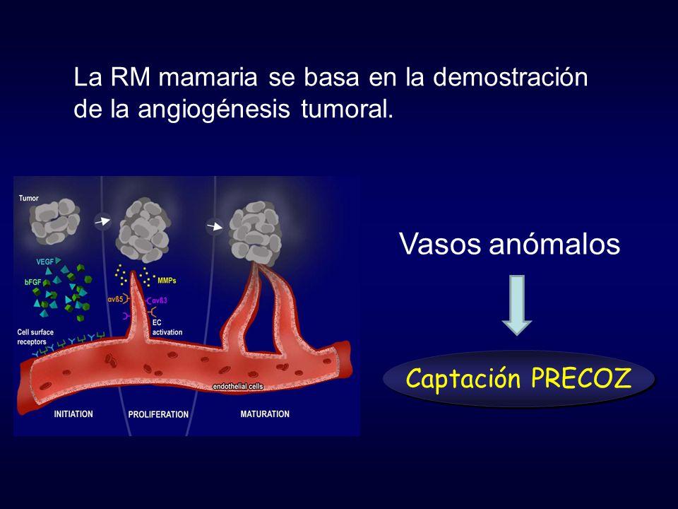 La RM mamaria se basa en la demostración de la angiogénesis tumoral. Captación PRECOZ Vasos anómalos
