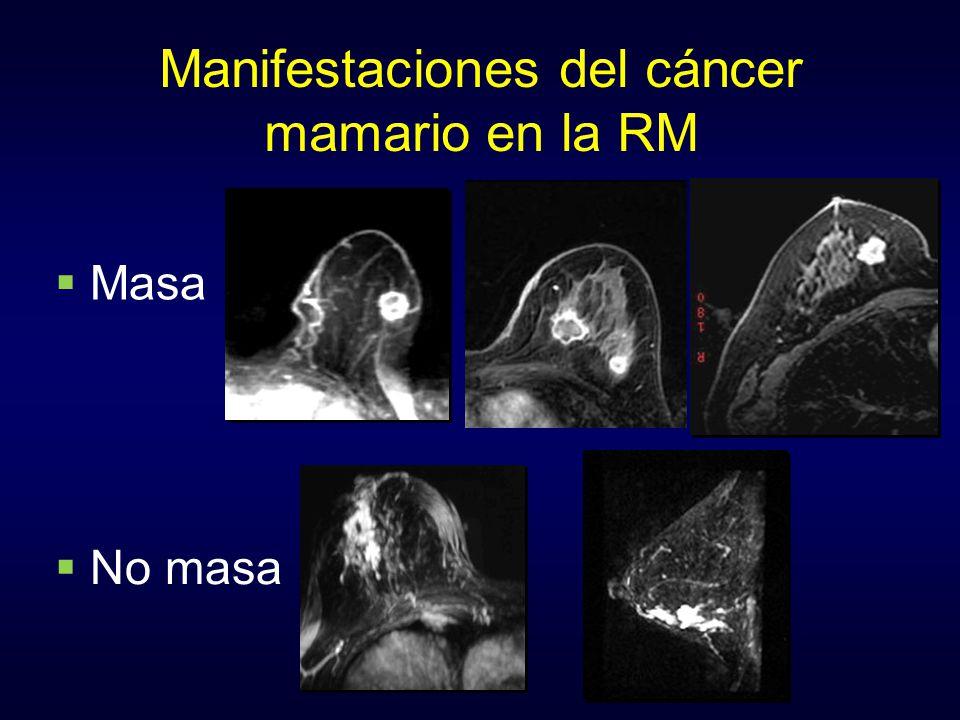 Manifestaciones del cáncer mamario en la RM Masa No masa