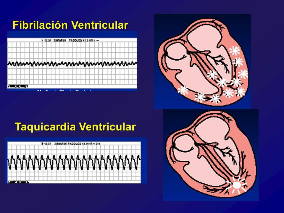 Fibrilación Ventricular Taquicardia Ventricular