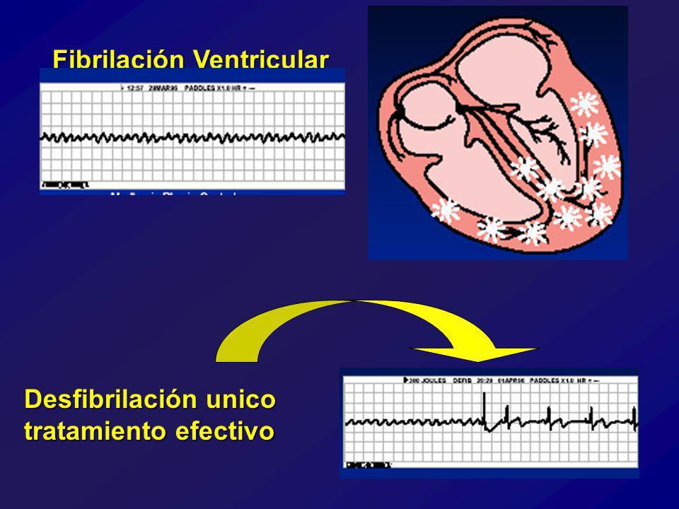 Fibrilación Ventricular Desfibrilación unico tratamiento efectivo