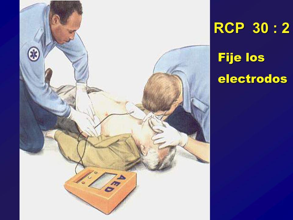 Fije los electrodos RCP 30 : 2