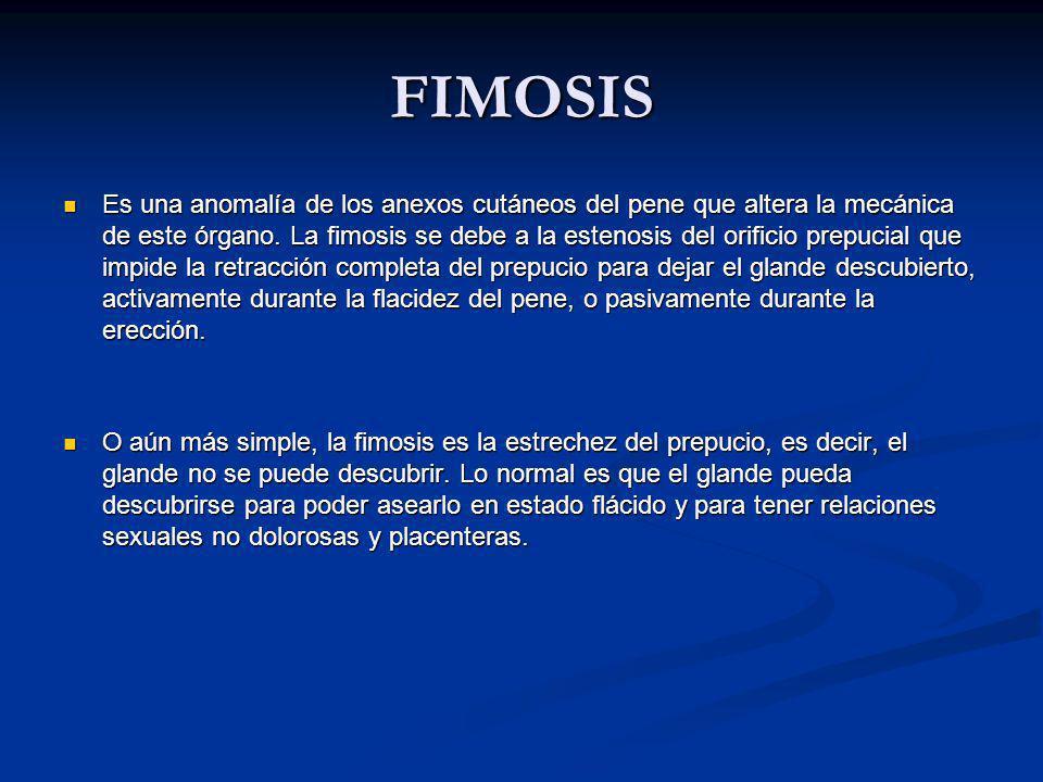 FIMOSIS Es una anomalía de los anexos cutáneos del pene que altera la mecánica de este órgano.