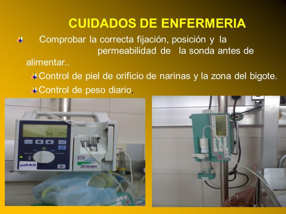 24/03/12 CUIDADOS DE ENFERMERIA Comprobar la correcta fijación, posición y la permeabilidad de la sonda antes de alimentar.. Control de piel de orific