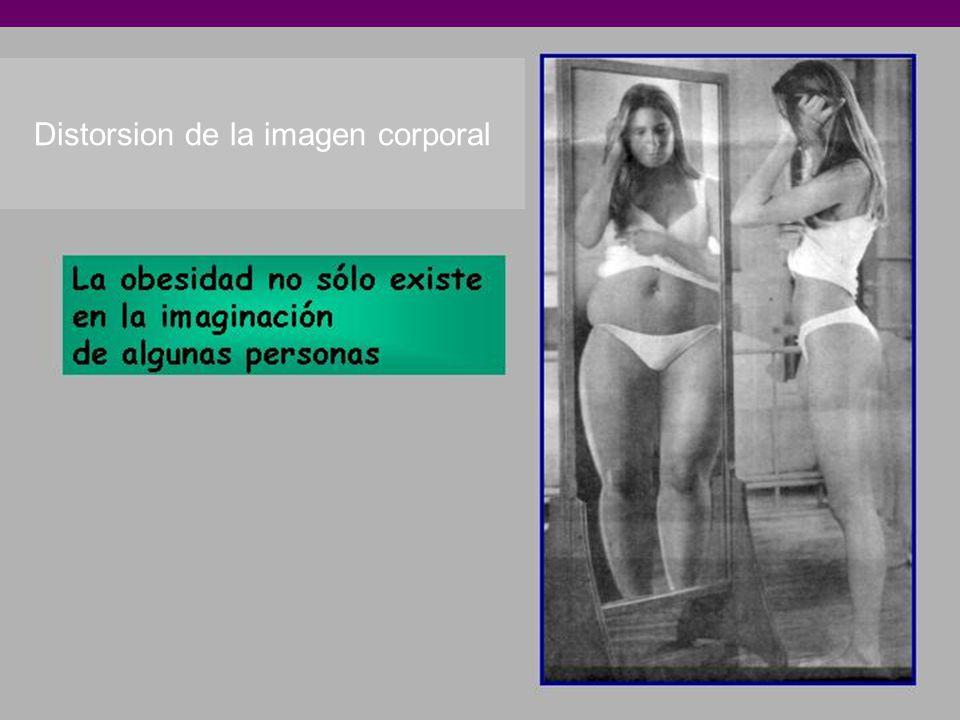 Distorsion de la imagen corporal